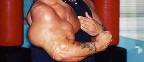 anabole steroider bivirkninger jenter